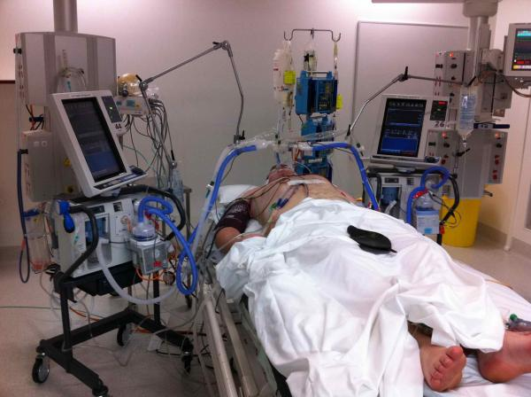 patient with two ventilators